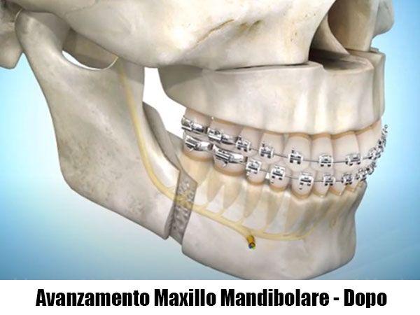 dopo un avanzamento maxillo-mandibolare