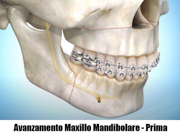 prima di un avanzamento maxillo-mandibolare