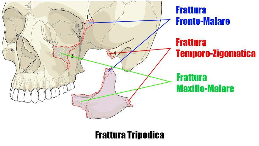 Frattura tripodica