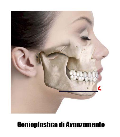 Genioplastica di avanzamento