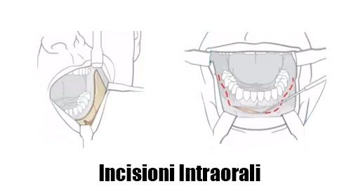 Incisione Intraorale