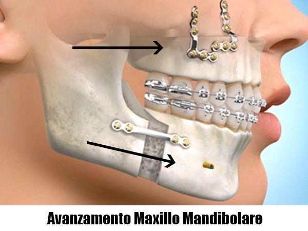 Rappresentazione di un intervento di avanzamento maxillo-mandibolare