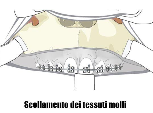 incisioni-intraorali