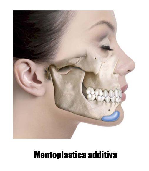 Genioplastica additiva